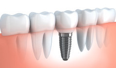 Dental Implants Melbourne CBD
