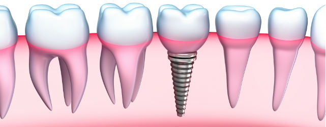 shutterstock 121053022 Your Questions about Dental Implants Answered