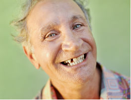 shutterstock 51481933 Dental Implants set to be the Dental Treatment of 2014