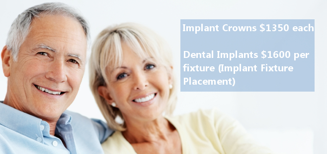 iStock 000014235203Small Affordable Dental Implants for the Baby Boomers